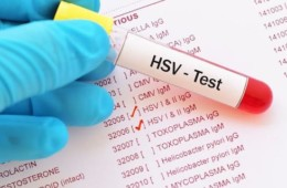 New! Herpes Management Protocol